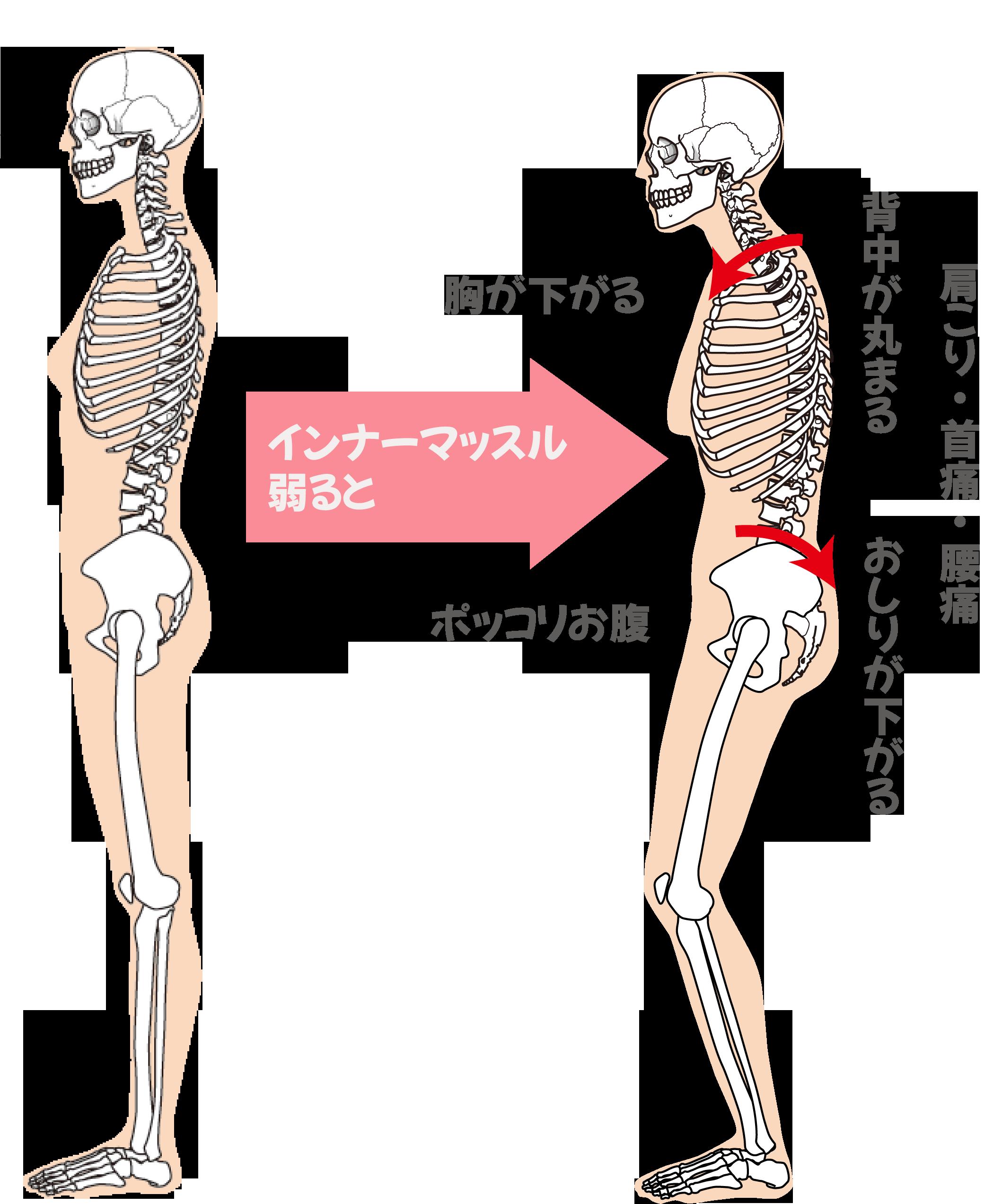 インナーマッスルが弱るとおこる肩こり・腰痛・首痛の説明画像
